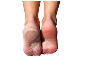 Baby Foot - Foot Peeling for Ideal foot skin